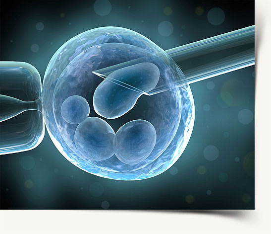 Preimplantation Genetic Diagnosis Sex Selection 112